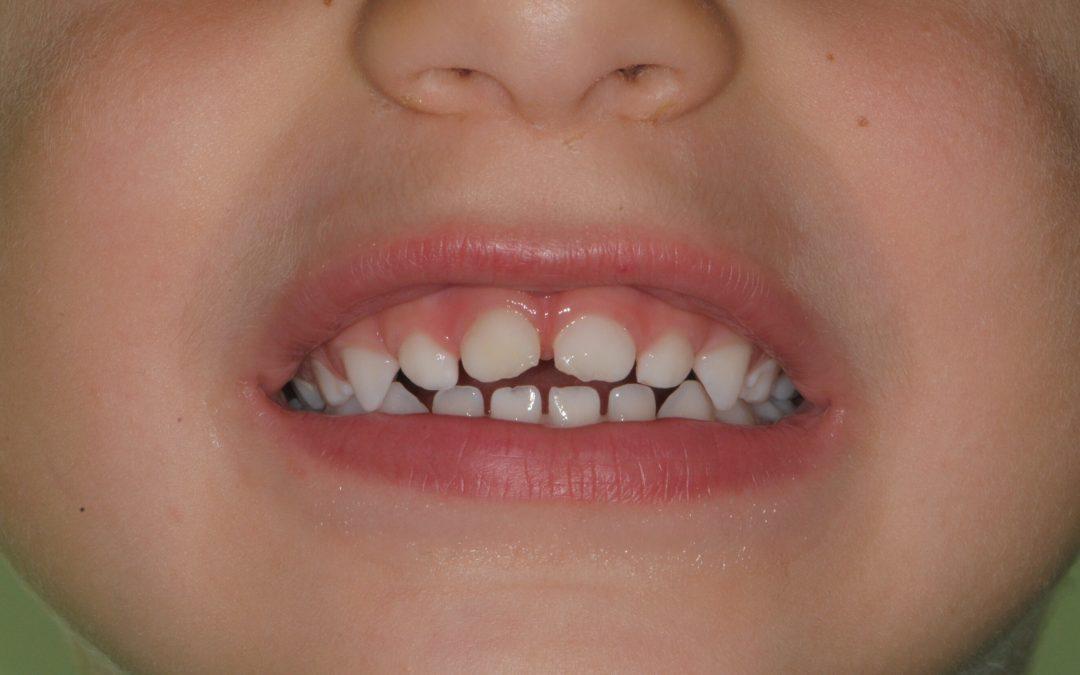 Perché la cura dei denti da latte è fondamentale